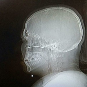 Lawn mower shoots 3-inch wire up man's nose, into his head